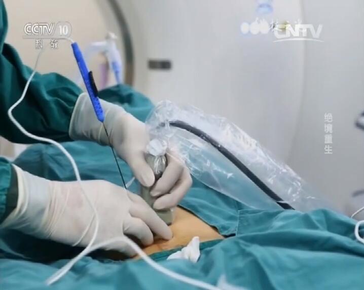 氩氦冷冻消瘤减瘤疗法